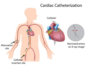 CardiacCatheterization-lg