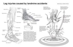 landmine_injuries
